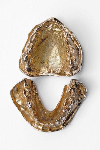 Cordillera-dentada-2015-Modelo-de-bronce-y-oro-arcada-maxilar-y-mandibular-medidas-variables-401x600
